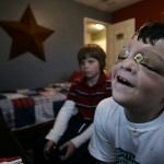 A week later, Grant plays video games with neighbor friend, sixth grader Logan Perdue.  Grant's face is still swollen and he can't wear his glasses. It's the first time they've gotten together since Grant's surgery.