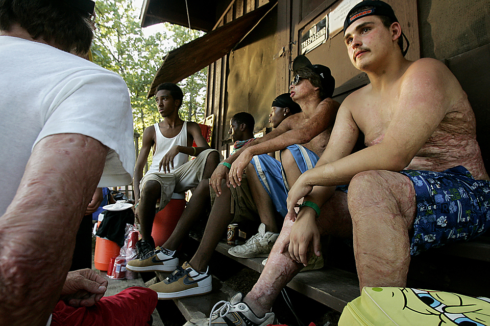 Campers hang out at the cookout at Missouri Children's Burn Camp in Rocky Mount's Camp Sabra, Lake of the Ozarks.  Typically, about one-third of the kids attending burn camp are from the Kansas City area.